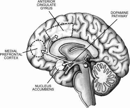 Left Anterior Insula Dopamine Anterior Insula